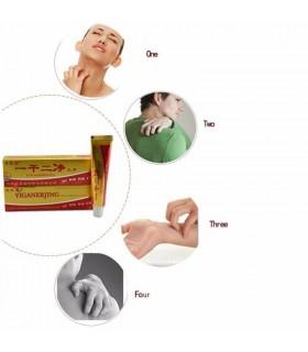 Крем за лечение на псориазис и екзема