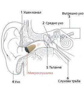 комплект невидима микро слушалка за мобилен телефон